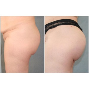 Liposuction on Legs